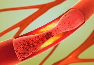 Ausfällen und Verengung der Blutgefäße - Arteriosklerose