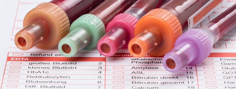 Blutwerte und Laborwerte - einfach erklärt