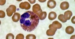 Eosinophilie