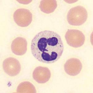 neutrophiler Granulozyt
