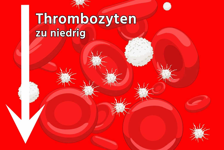 Thrombozyten zu niedrig