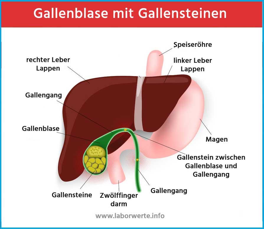 ᐅ Gallenblase & Gallenstein Aufbau & Funktionen - Therapie bei ...